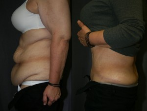 What Happens If I Put On Weight After Liposuction? - Refine