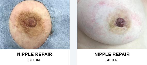 Nipple Repair Before After