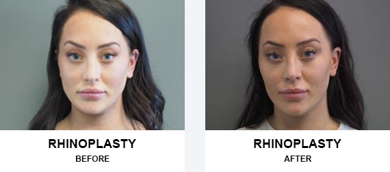 Rhinoplasty Before After